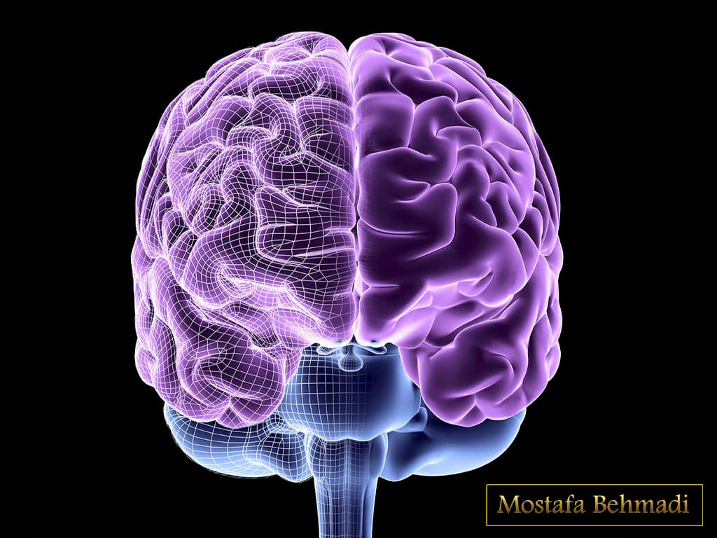 تومور مغز
