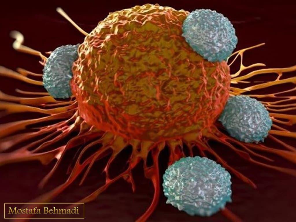 اولین علائم سرطان خون