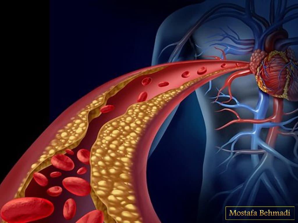 نشانه های سرطان خون