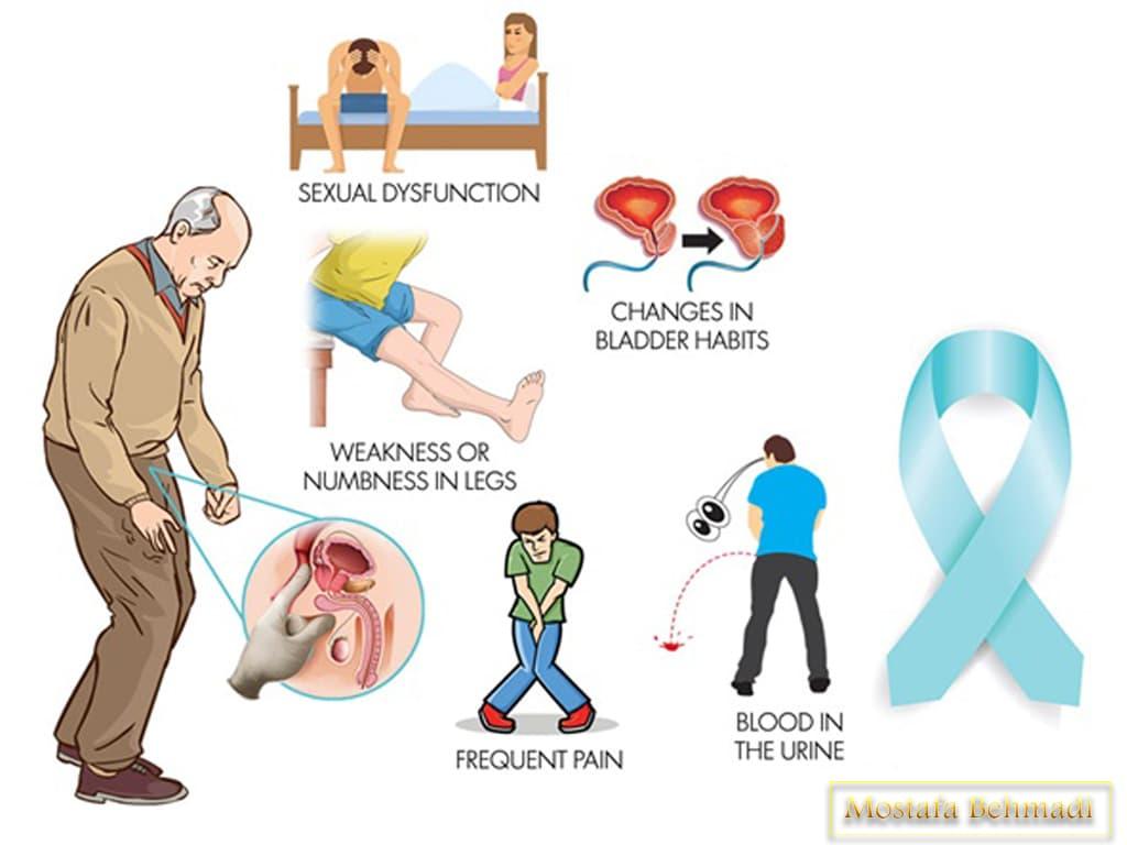 نشانه های پروستات