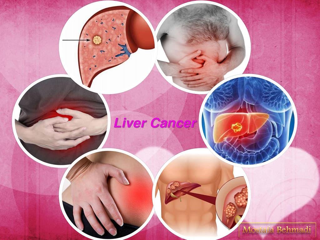 سرطان کبد و درمان آن